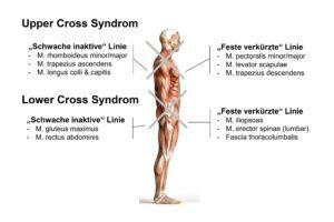 Lower und Upper Cross Syndrom